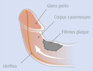 penile-curvature-picture Описание и профилактика болезни Пейрони