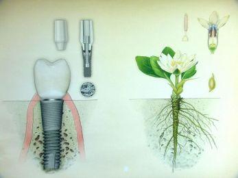 002-0025-vozmoznosti_moskovskih_klinik Одномоментная имплантация зубов: восстановление зубов всего за одну неделю