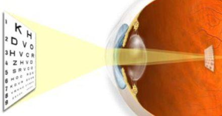 astigmatism Как поступить пациенту, если  у него обнаружили астигматизм?