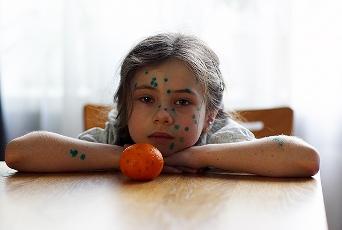 chickenpox Ветрянка у детей и взрослых