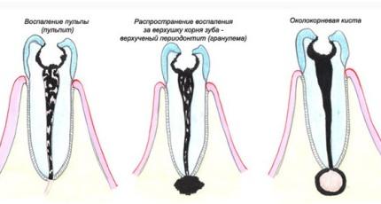 karies9 Эффективное лечение гранулемы зуба
