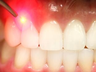 teeth-1 Лазерное лечение заболеваний десен