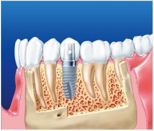 11-300x256 Имплантанция и протезирование зубов в клинике: плюсы и минусы