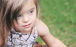096-300x185 Дети с синдромом Дауна: несколько фактов