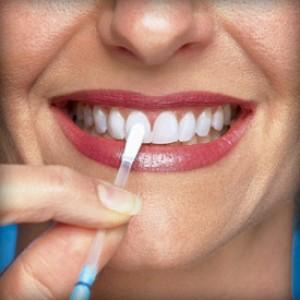 fogfeherites-300x300 Что такое отбеливание зубов?