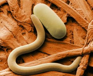 nematode-300x246 Паразиты в организме человека: признаки и методы профилактики