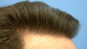 10487659-dermhair-clinic-300x171 Косметическая пересадка волос: суть и последствия