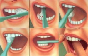 1398971898_kak-pravilno-chistit-zuby-kartinki-300x192 Зубы – наше все