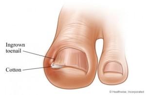 0_ad636_c3d9453c_orig-300x195 Как бороться с вросшим ногтем?