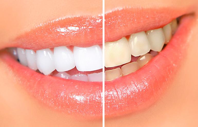 Топ-3 профессиональных системы отбеливания зубов дома