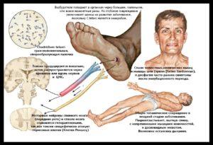 5e83d3fb-e9df-48fc-8f1e-7921e70ee013-300x205 Как не заболеть столбняком: соблюдаем меры профилактики