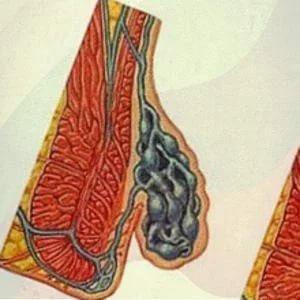 i-1 Причины возникновения и методы избавления от геморроидальных шишек