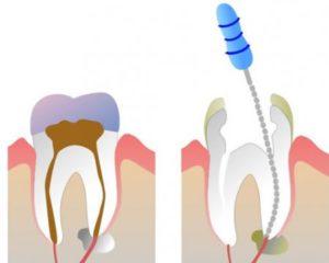 1466770906_udalenie_zubnogo_nerva-300x240 Удаление зубного нерва в современной стоматологии