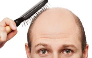 image001-20-1024x640-300x188 Почему выпадают волосы?