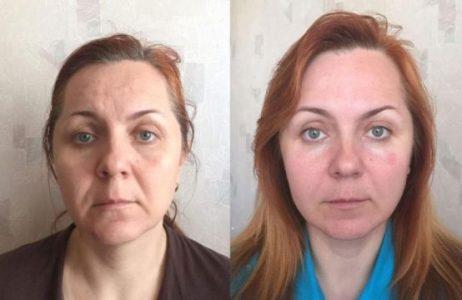 doiposlesplit-768x499-1 Как стать моложе и привлекательней без операций и уколов с помощью сплит-массажа