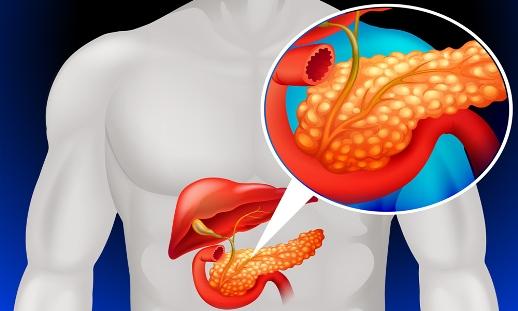 oh3xrxdw Хронический панкреатит - методы, улучшающие качество жизни